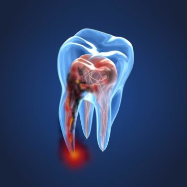 https://healthcall.ae/wp-content/uploads/2019/06/Root-Canal-PIC-368x368.jpg