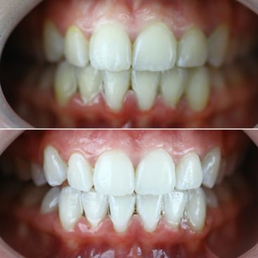 Teeth Whitening Dubai