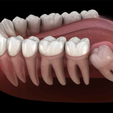 https://healthcall.ae/wp-content/uploads/2019/06/Wisdom-Teeth-Extractions-PIC-368x368.jpg