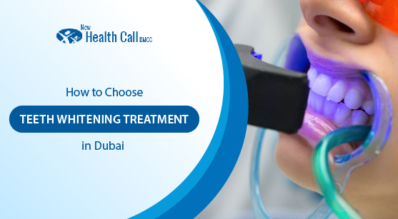 teeth-whitening-treatmnent-in-dubai